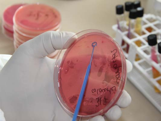 Streaking of Sample on the media for purpose of organism growth